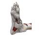 Flat Feet - Plantar Fasciitis - Fallen Arches Products